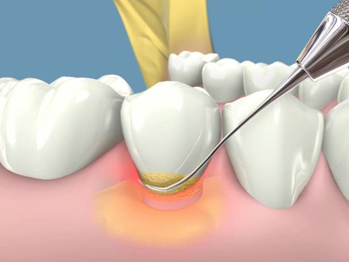 Enfermedad en las encías: gingivitis  y periodontitis