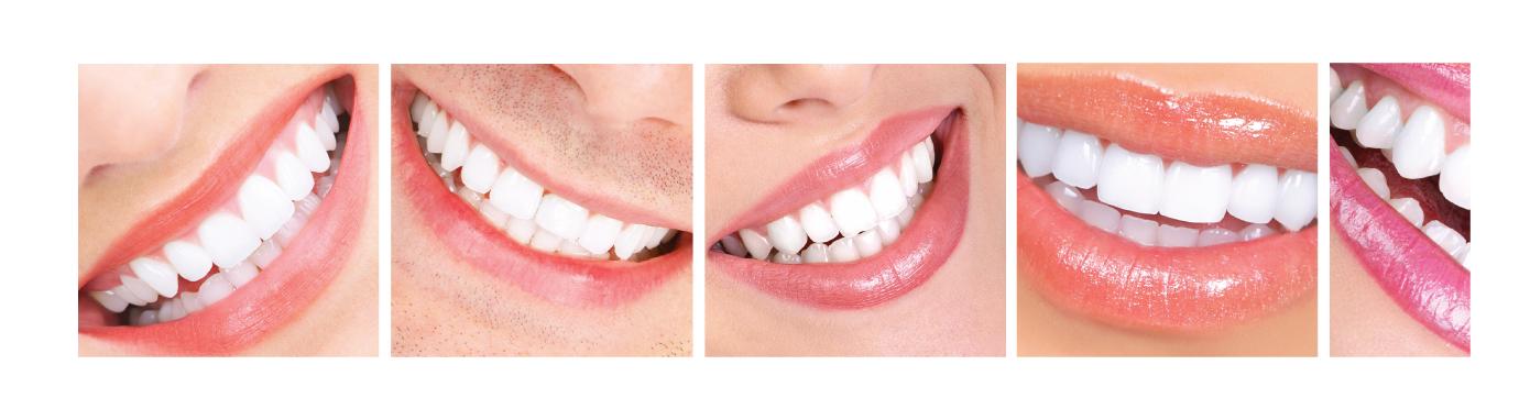 Blanqueamiento dental en Verdental