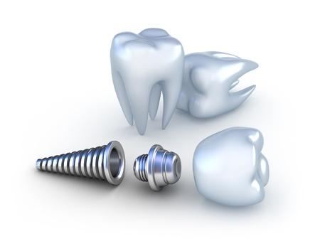 Implantes dentales en VerDental. Clínica dental en Torrejón.
