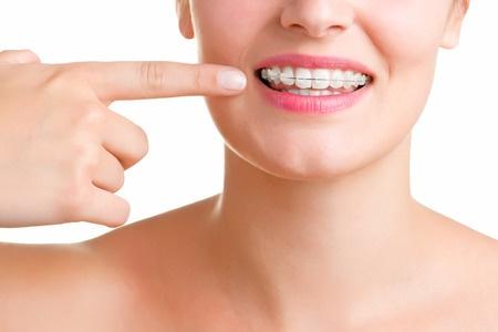 Ortodoncia en clínica Verdental. Bracktes estéticos en verdental. Torrejón